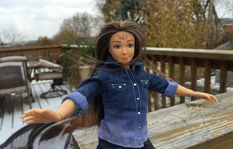 Revoluciona Barbie con estrías, acné y celulitis