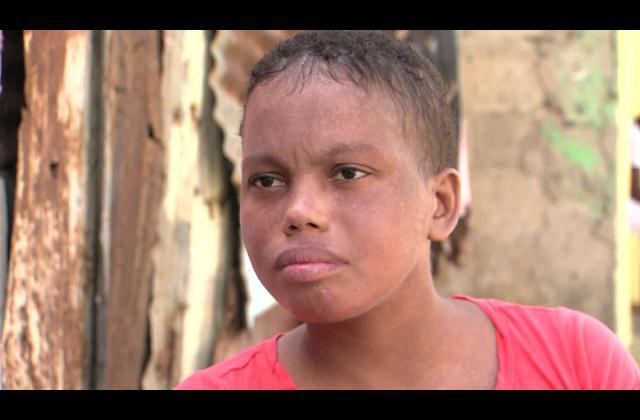 Madre de joven que padece lupus pide ayuda