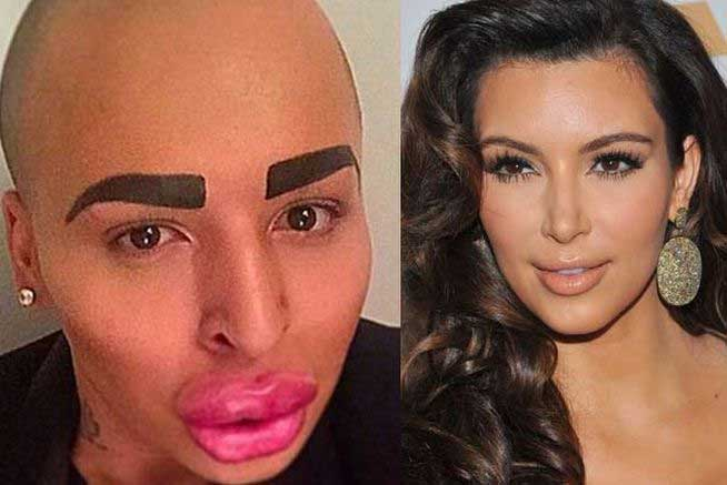 Un joven gasta 150 mil dólares para parecerse a Kim Kardashian