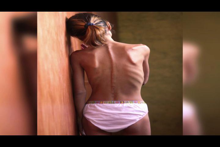 La anorexia puede empezar a gestarse desde el hogar, según experta