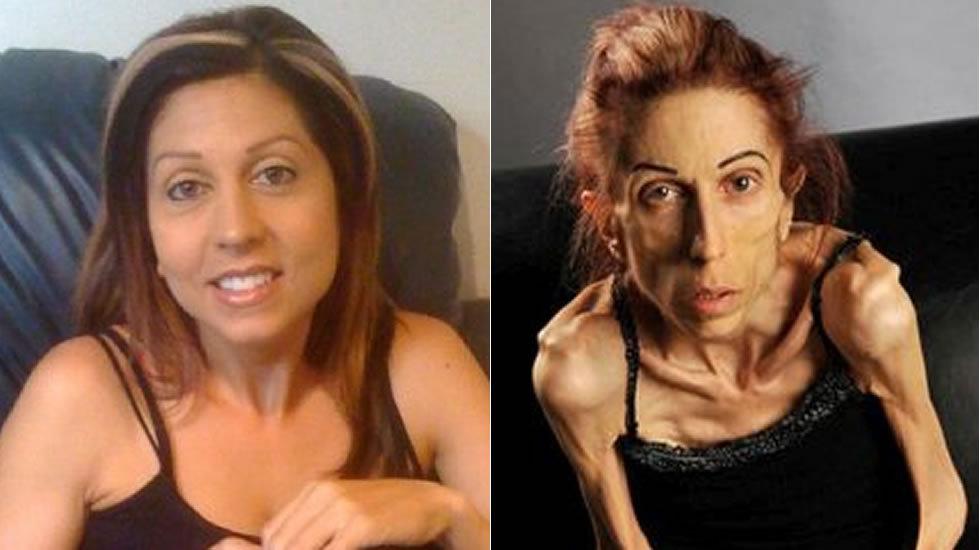 Mujer anoréxica en EEUU pide ayuda en internet para salvar su vida
