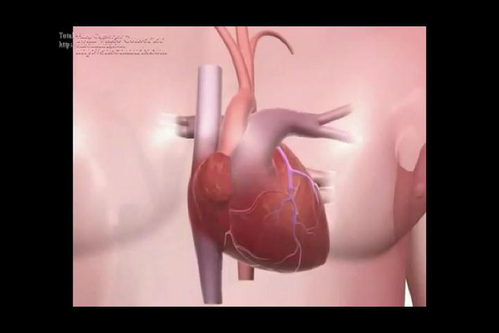 Mujeres más afectadas que hombres por enfermedades cardiovasculares