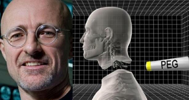 Muchos ricos quieren trasplante de cabeza, dice médico