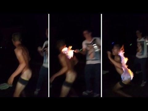 Joven le prende fuego a su trasero por diversión y casi muere