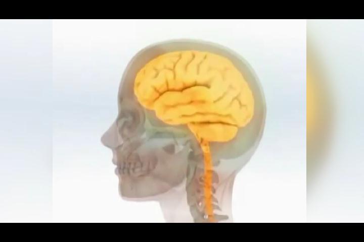 ¿Qué es aneurisma cerebral y cuáles son sus síntomas?