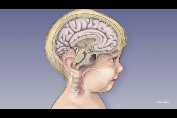 RD carece de la vacuna que previene la meningitis