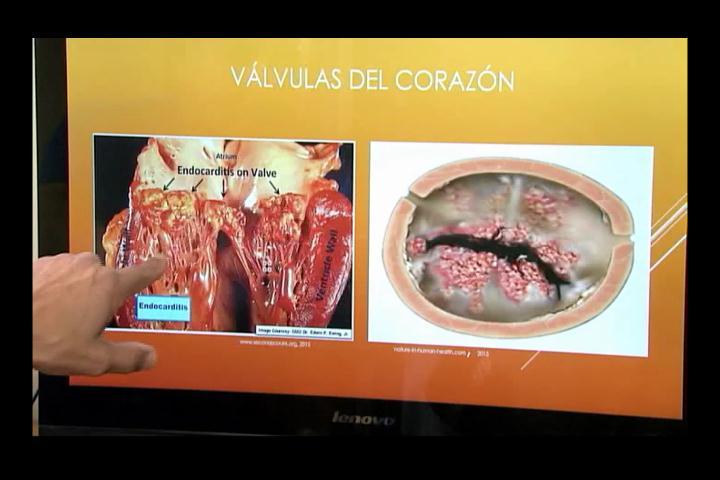 ¿Qué es la Endocarditis y cómo se podría evitar?