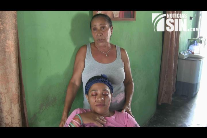 ¡Rara enfermedad! Sangre brota de ojos de una mujer en Azua