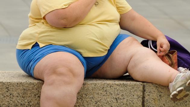 La obesidad afecta al funcionamiento del intestino humano, según un estudio