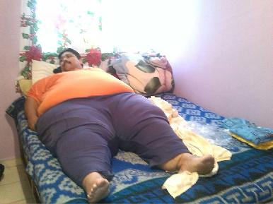 Operarán en México al hombre más obeso del mundo, que llegó a pesar 435 kilos