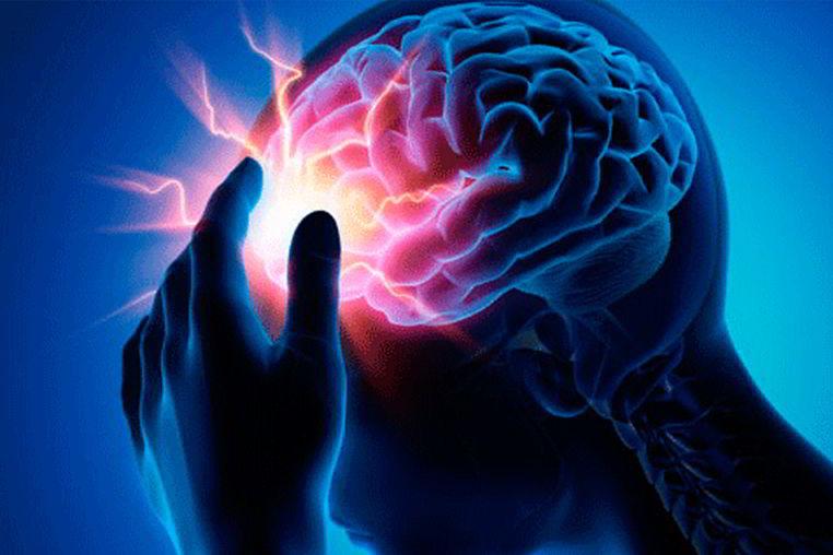 Cifra de accidente cerebrovascular en el mundo y en RD van en aumento
