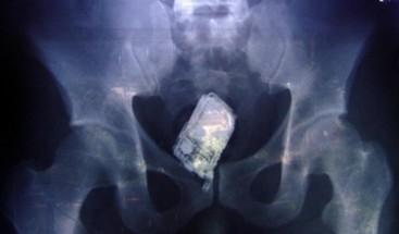 ¡Insólito! Preso muere en Brasil tras pasar una semana con tres celulares en el estómago