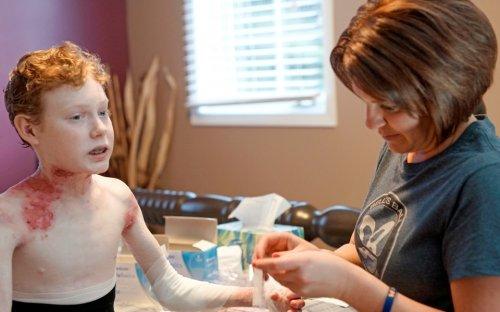 Reconstruyen el 80 % de la piel de un niño con una técnica genética