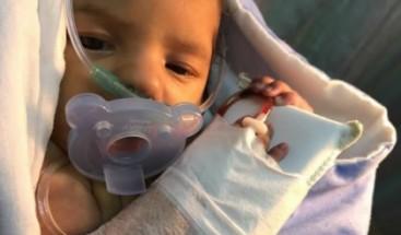 Familiares de bebé con cardiopatía congénita solicitan ayuda para su tratamiento