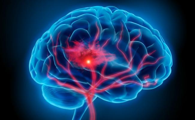 Desarrollan en Colombia dispositivo para clasificar lesiones cerebrales