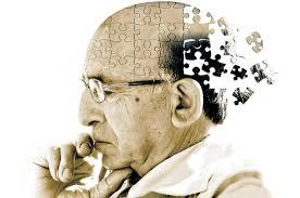 El gen Jalisco, la mutación del Alzheimer precoz, bajo estudio en California
