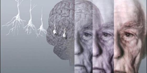 Cada tres segundos se detecta un nuevo caso de Alzheimer a nivel mundial