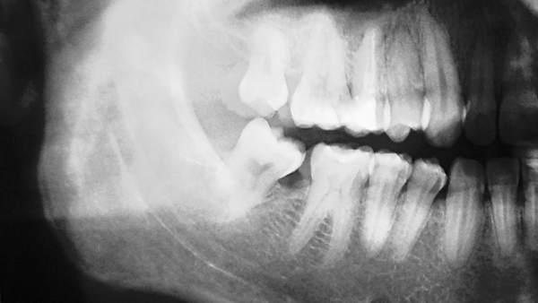 Implantan a un niño chino una mandíbula creada con una impresora 3D
