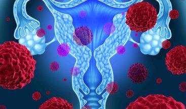 Estudiantes desarrollan innovador método para detectar cáncer cervicouterino