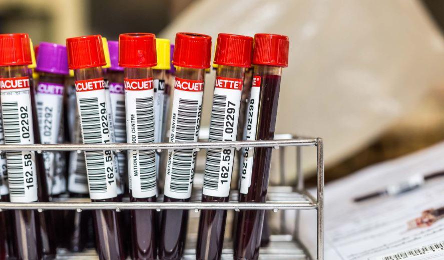 Presentarán esta semana en el país nuevas pruebas de detección de cáncer
