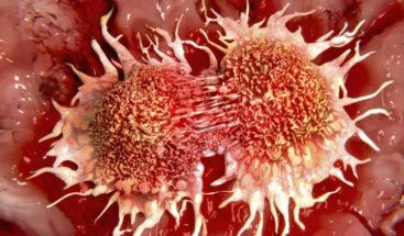 Desinformación y síntomas confusos retrasan diagnóstico de cáncer de próstata