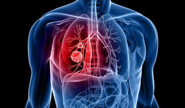 Un tratamiento triplica supervivencia en cáncer de pulmón no microcítico ALK+