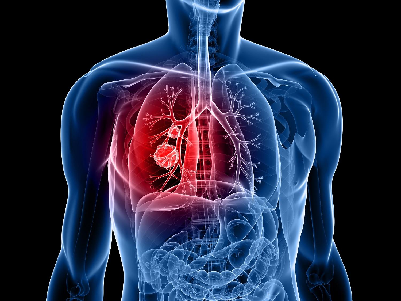 Investigadores chinos descubren proteínas asociadas al cáncer de pulmón