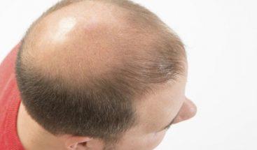Desarrollan nueva metodología para combatir la calvicie