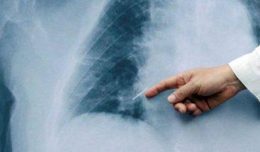 Cáncer de pulmón es uno de los más frecuentes en hombres