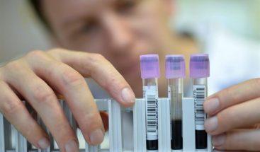 Crean análisis de sangre rápido que determina edad de víctima de un crimen
