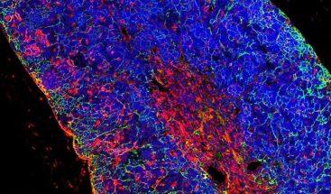 Generan leucemia de linfocitos T 'in vivo' a partir de una célula sana