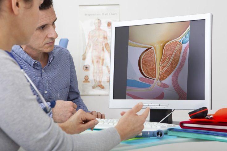 La medicina nuclear abre el camino a tratamiento dirigido en cáncer próstata