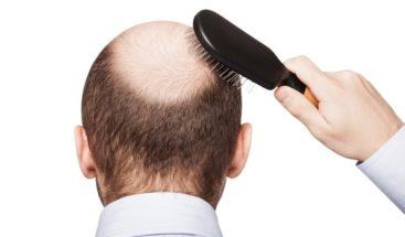 Estudiantes crean tratamiento para combatir alopecia a base de nuez