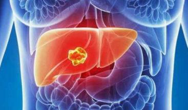 Científicos desarrollan tratamiento genético para aliviar cirrosis