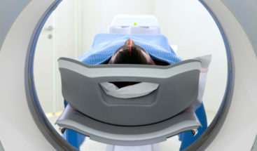 Leer escáneres con algoritmo permite predecir éxito de inmunoterapia