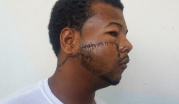 Joven es atacado con arma blanca en SPM; agresor fue entregado a la PN