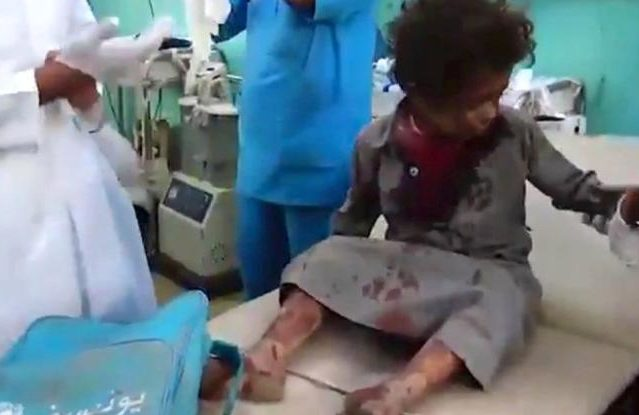 Decenas de niños que iban en un autobús escolar mueren por un bombardeo