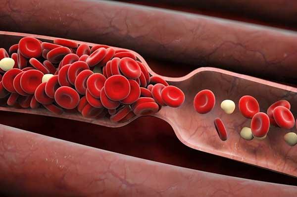 Desarrollan un dispositivo para prevenir apoplejías y ataques al corazón