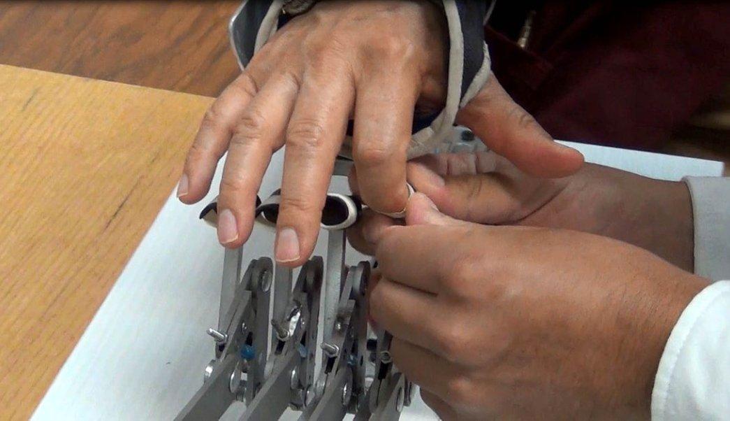 Desarrollan dispositivo de bajo costo para rehabilitar dedos de la mano