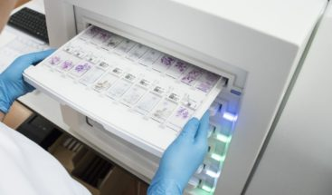 Marcadores tumorales: Eficaces como complemento a otras pruebas médicas