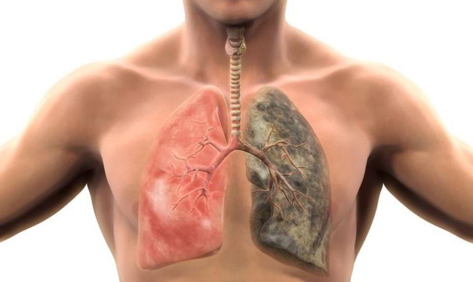 Cáncer de pulmón cuesta 1,35 billones de dólares anuales a Latinoamérica