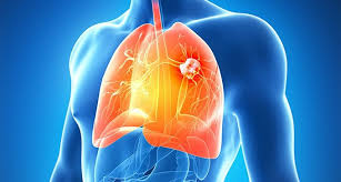 Cáncer de pulmón causa 60.000 muertes al año en A. Latina, según informe