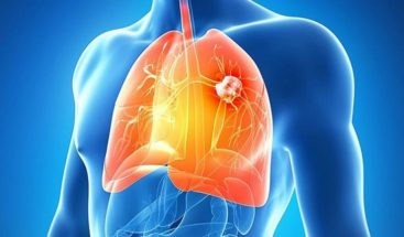 El 25% de los casos de cáncer de pulmón desarrollan metástasis cerebral