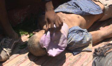 Hombre muere tras ser impactado por caballo en un municipio de Azua