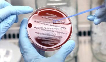 Una extraña bacteria afecta a la población en Argentina