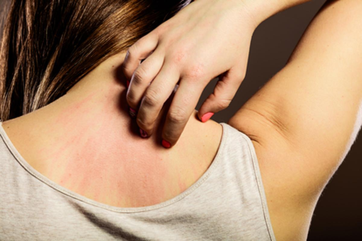 Estrés, exposición al sol e infecciones desencadenan dermatitis atópica