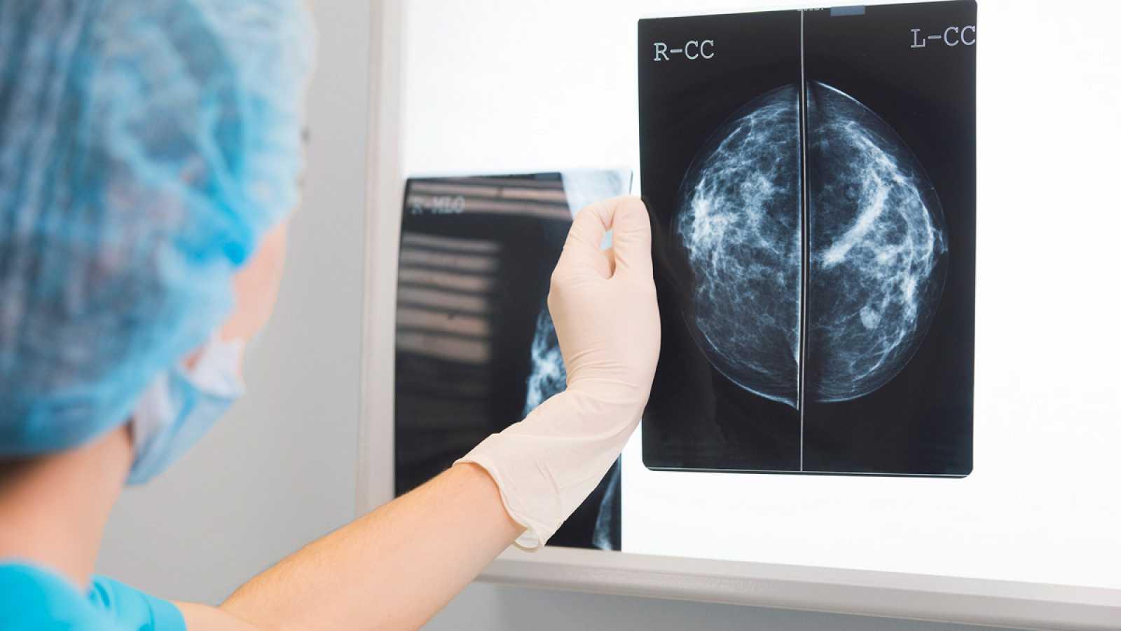 Prueban con éxito en ratones un fármaco contra el cáncer de mama HER2+