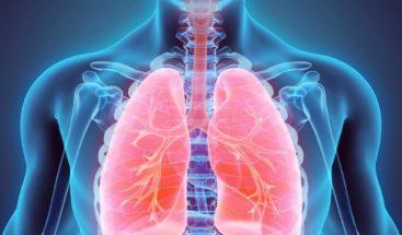 Cáncer de pulmón: grandes retos en diagnóstico, prevención y tratamiento