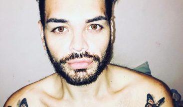 Hombre se somete a 27 cirugías para parecerse a Ricky Martín