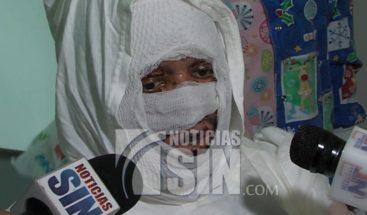 Dan alta médica a quemado en explosión de Polyplas luego de 23 días